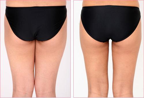 锦州富来幕臀部吸脂手术的优势是什么
