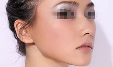 青岛伊美尔耳垂畸形修复的方法有哪些