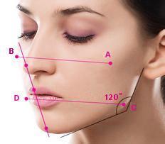 淄博阳光下颌角整形适合哪些脸型