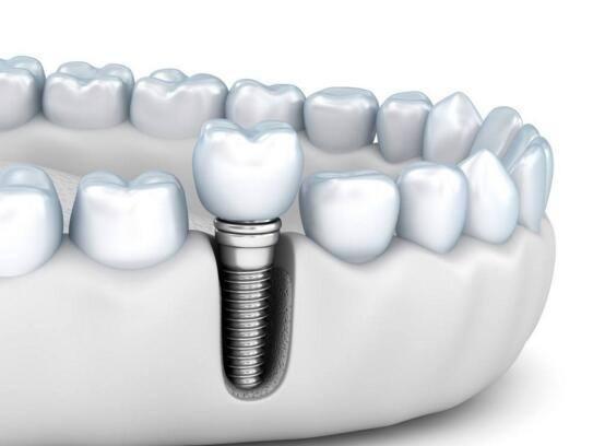锦州富来幕种植牙齿要多长时间