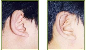 淄博阳光杯状耳矫正有6个优点