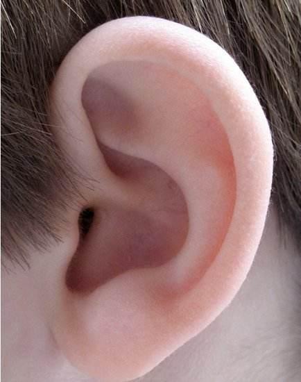 锦州富来幕耳垂整形手术会留疤吗