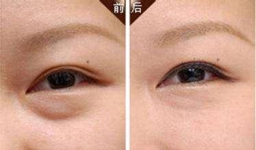 祛眼袋失败的修复方法是什么