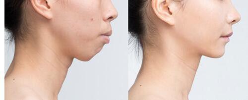 锦州富来幕隐形矫正牙槽骨突出的优点是什么