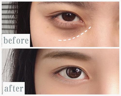 激光去黑眼圈属于非手术治疗