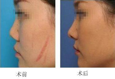 锦州富来幕激光疤痕修复效果好吗