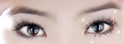 双眼皮的人做开眼角手术效果会更好