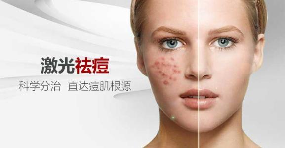 激光祛痘可以快速消除顽固的痘痘