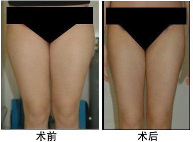 陕西省友谊医院大腿吸脂一次吸取多少脂肪