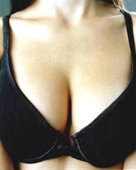 南京假体隆胸有什么优点