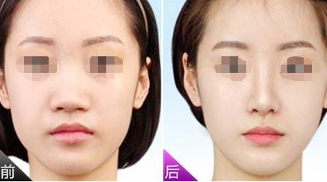 青岛伊美尔鼻孔缩小术效果如何