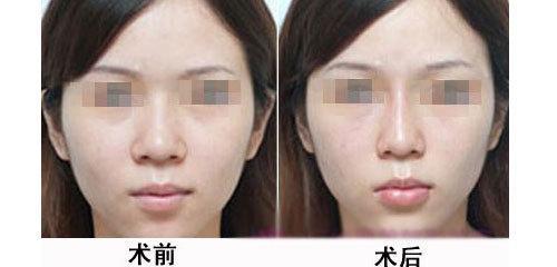 蒜头鼻的克星——鼻头缩小手术