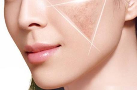 做激光美容祛斑会让皮肤变薄吗