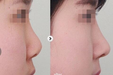 【口碑解读】遵义整形医生唐芳明的鼻部综合术