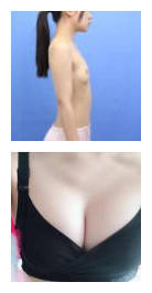 【名医解读】石家庄整形医生何静的乳房整形