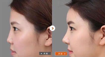 【品牌解读】亚洲医美美容连锁品牌,包头华美医疗美容医院