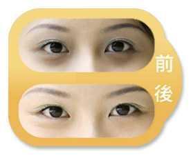 淄博阳光激光祛黑眼圈有伤口产生吗