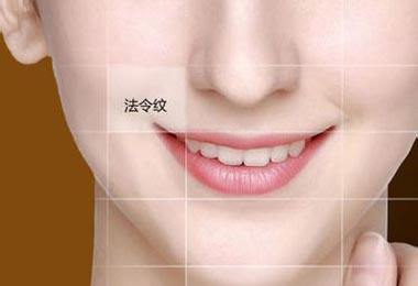 陕西省友谊医院玻尿酸去除法令纹的优点