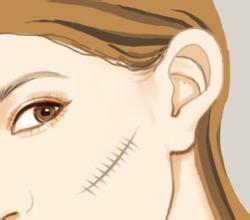 淄博阳光激光祛疤后怎么护理效果好