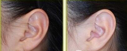 耳垂畸形修复的方法有哪些