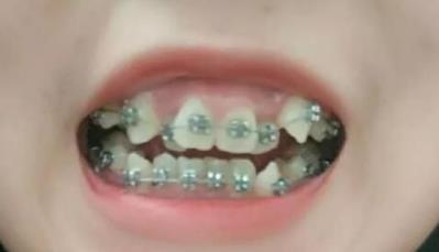 牙齿矫正案例,终于可以笑得开心了