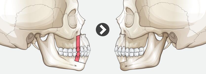 青岛伊美尔牙槽骨突出内推术后该如何护理