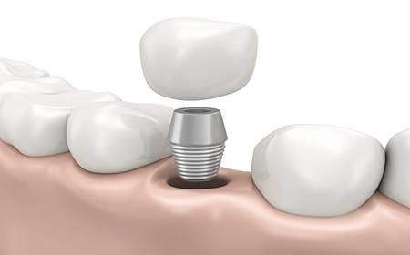 陕西省友谊医院种植牙齿要多长时间