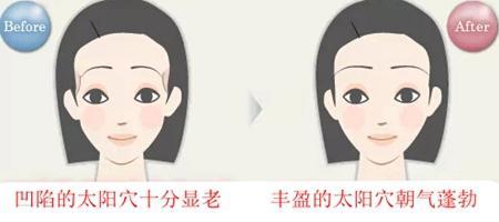 陕西省友谊医院自体脂肪丰太阳穴的优势在那