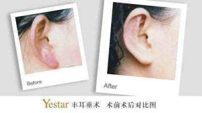 陕西省友谊医院自体脂肪丰耳垂优势是什么