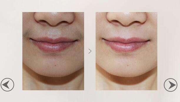 西安俪时代激光脱唇毛术后护理是什么