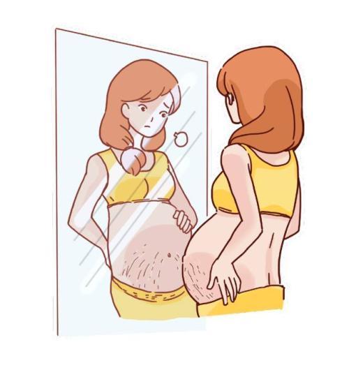 淄博阳光激光去妊娠纹几次可以做干净