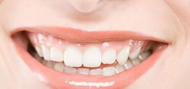 一般牙齿矫正价格比较高