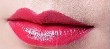 淄博阳光纹唇术手术过程有哪些