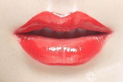 重唇矫正价格5000-9000元