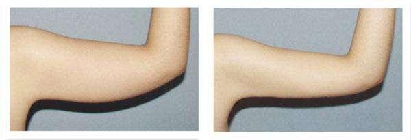 广西桂林手臂吸脂手术术前准备是什么