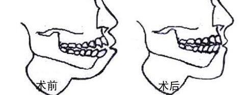 淄博阳光牙槽骨突出矫正如何确保不会出现后遗症