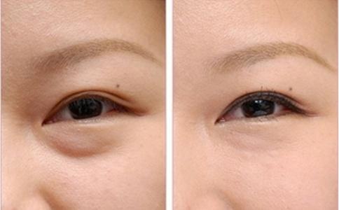 烟台洛神不用手术去眼袋的方法