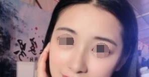 假体隆鼻案例,给我弧度刚好的小翘鼻