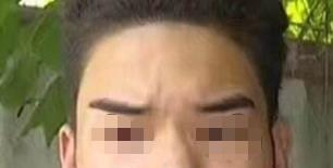 淄博阳光种植发际线手术特点