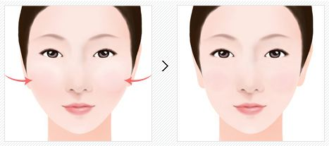 陕西同济医院改脸型手术有哪些