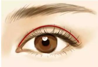双眼皮手术需要埋线吗