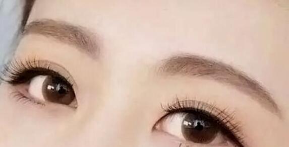 【精品解读】眉毛种植和纹眉毛哪个更好
