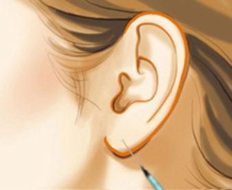 深圳军科耳垂畸形修复的方法有哪些