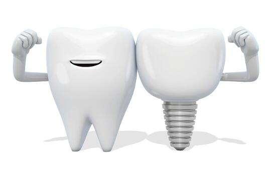 西安俪时代种植牙齿要多长时间