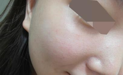 激光收缩毛孔案例,改善毛孔光滑皮肤