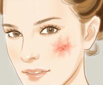 激光治疗鲜红斑痣如何做