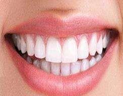 牙齿美白案例,牙白更有气质