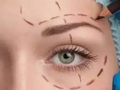 切眉术的方式都有哪些