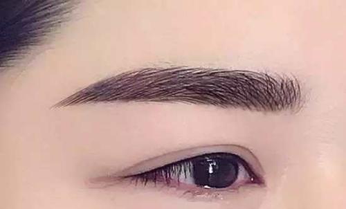 眉毛种植术后九天就可拆线
