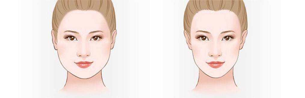 3D立体瘦脸针安不安全